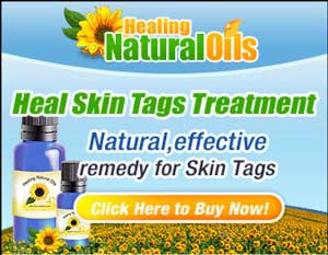 The Heal skin Tags treatment uses organic essential oils